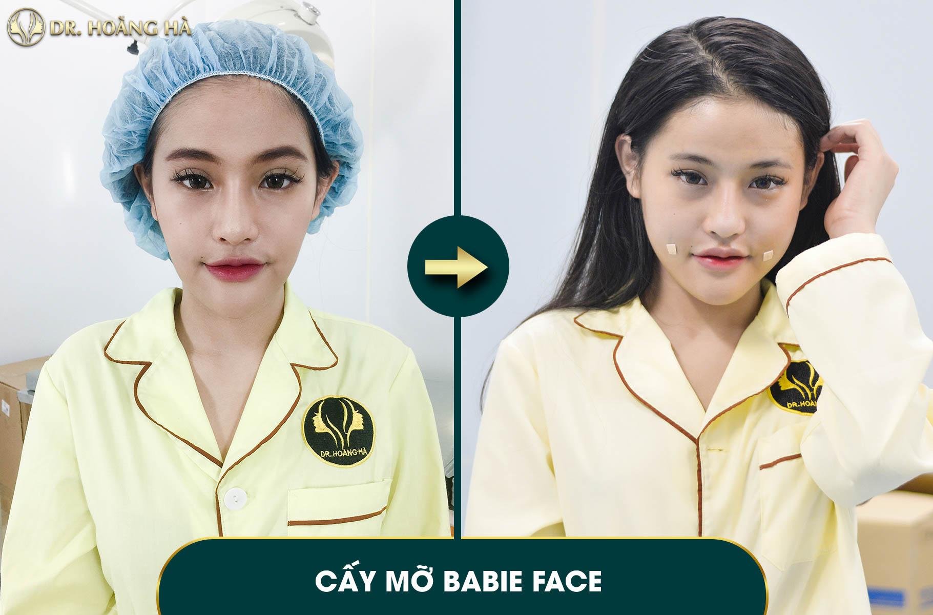 Cấy mỡ baby face làm cho khuôn mặt căng đầy, vùng thái dương rộng hơn