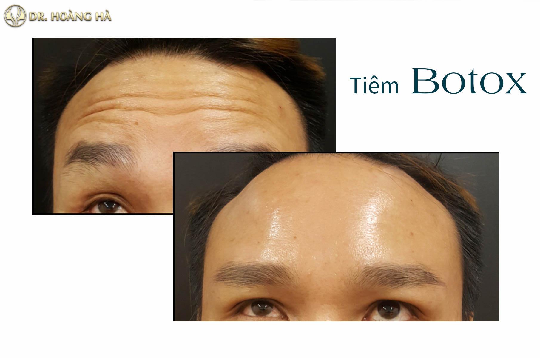 Khách hàng sau khi tiêm botox tại Dr Hoàng Hà