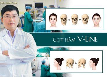 Gọt Hàm V-Line