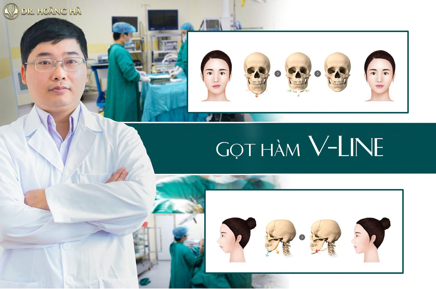 Got-ham-vline