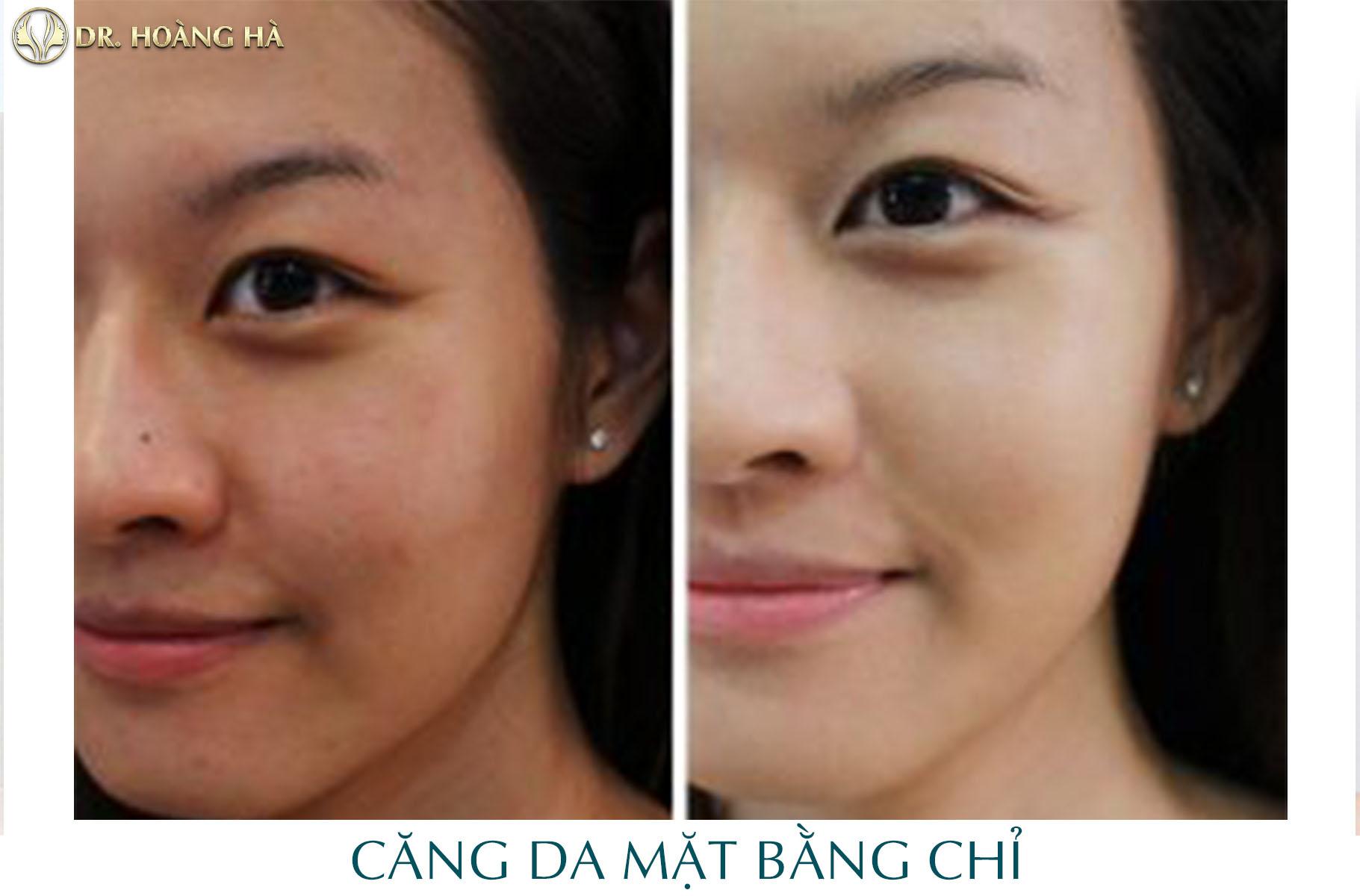 Khách hàng sau khi căng da mặt bằng chỉ collagen tại Dr Hoàng Hà