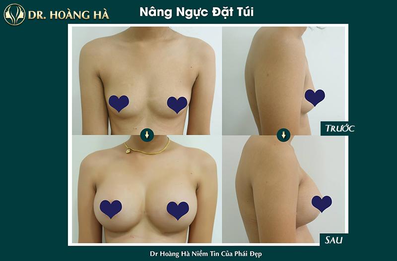 Khách hàng sau khi nâng ngực tại Dr Hoàng Hà