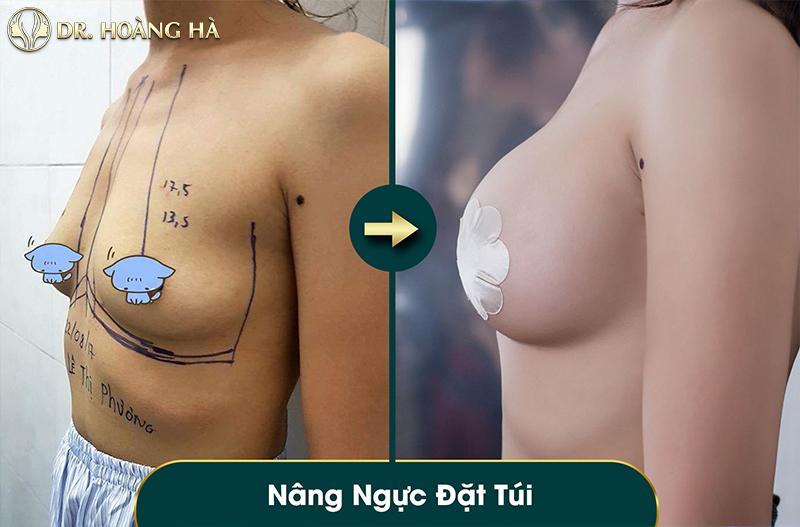 Tuân thủ chế độ chăm sau khi nâng ngực để vòng 1 hồi phục hoàn hảo