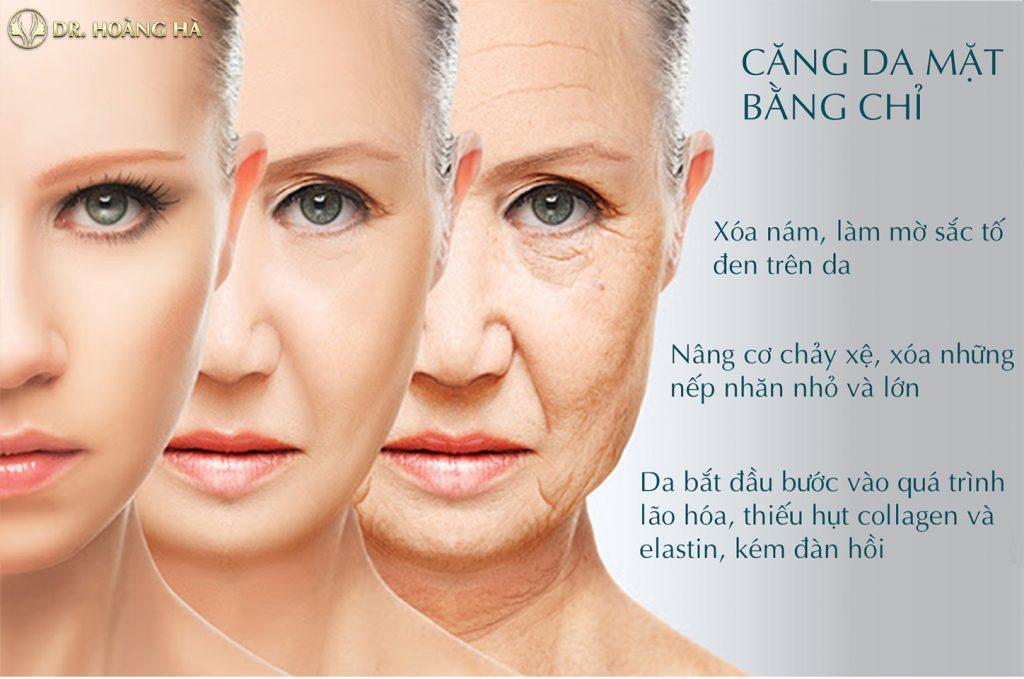 Căng chỉ collagen bao lâu thì đẹp