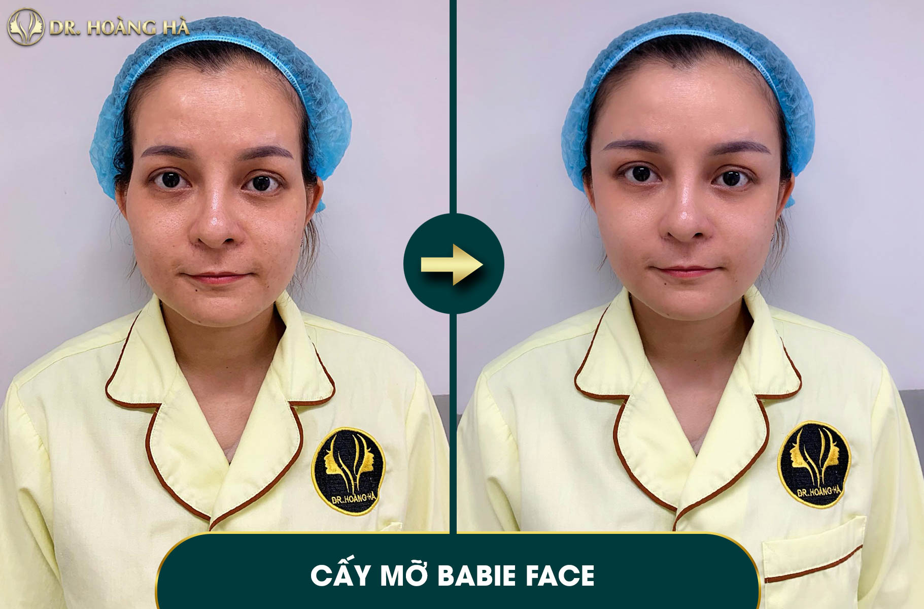 Khách hàng sau khi Cấy mỡ Babie Face