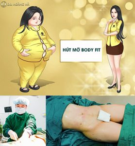 Hút mỡ Body Fit