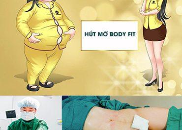Hút mỡ Body-Fit - Khi phẫu thuật KHÔNG còn là nỗi lo
