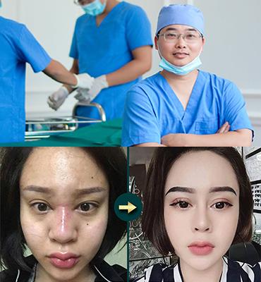 Bóc tách Silicone - Tiểu phẫu an toàn không biến chứng
