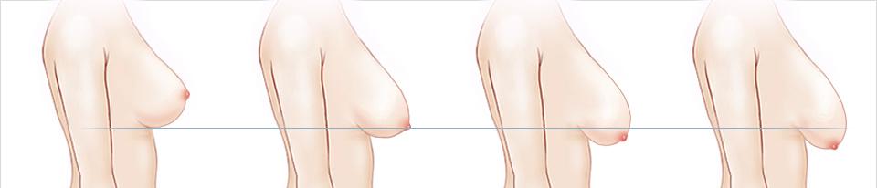 Nâng ngực chảy xệ giúp lấy lại vòng ngực căng tràn quyến rũ