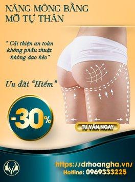 Cấy mỡ nâng mông - Cải thiện an toàn không phẫu thuật dao kéo