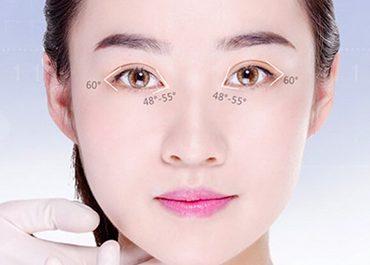 Mở rộng góc mắt - Hiệu quả vĩnh viễn an toàn không phẫu thuật