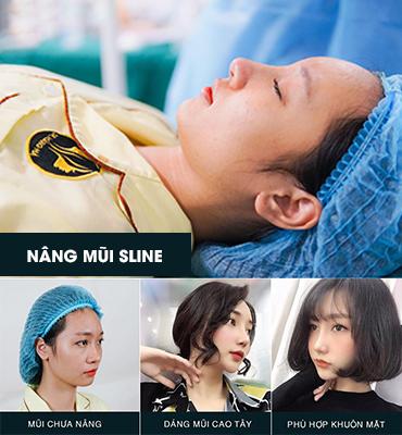 Nâng mũi Sline - Dáng mũi cao tự nhiên không lo biến chứng