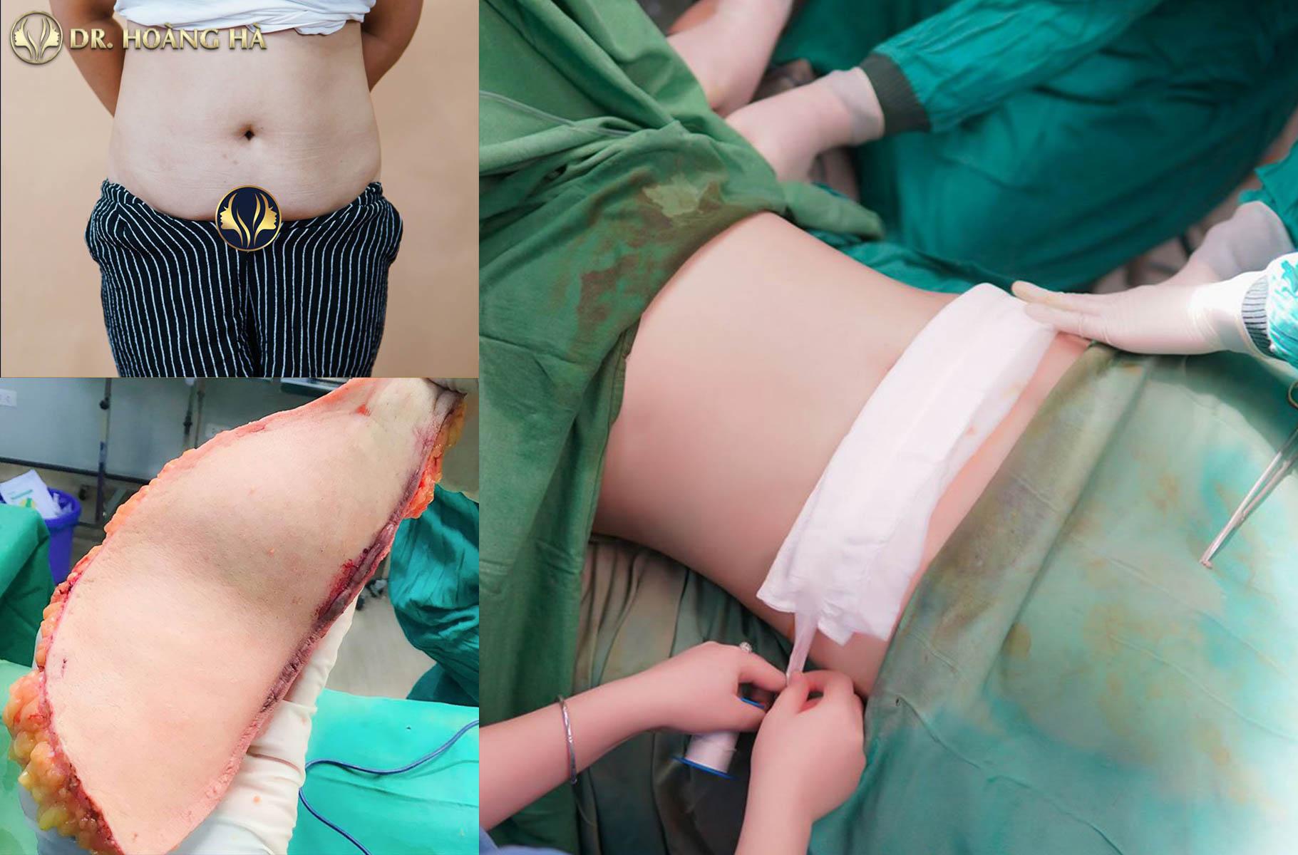 Khách hàng sau khi hút mỡ tạo hình thành bụng tại Dr Hoàng Hà