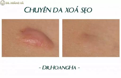 hinh-anh-khach-han-sau-khi-cat-seo