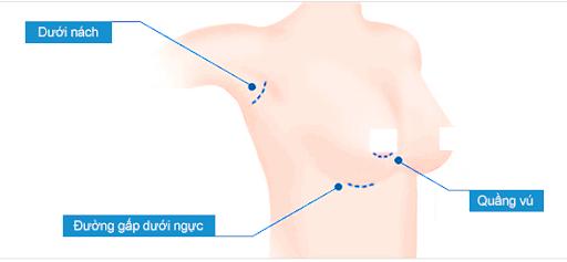 3 loại đường mổ chính, dưới nách, đường gấp dưới ngực, dường quầng vú