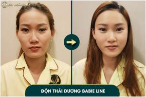 co-nen-don-thai-duong-khong