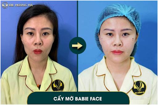 Khuôn mặt trở nên cân đối, da mặt hồng hào sau khi cấy mỡ