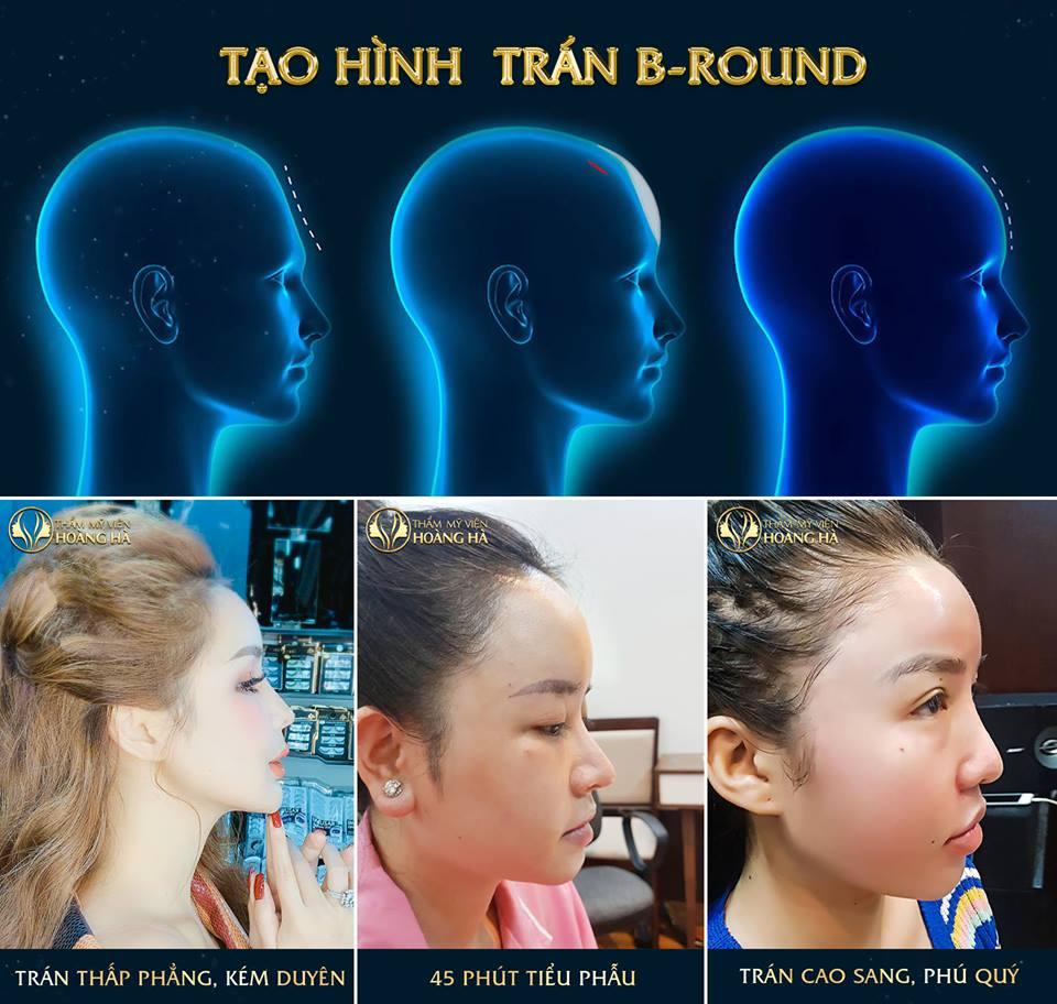 Mô phỏng 3D tình trạng khuyết điểm và hình ảnh sau P.T, đưa ra phác đồ điều trị chính xác