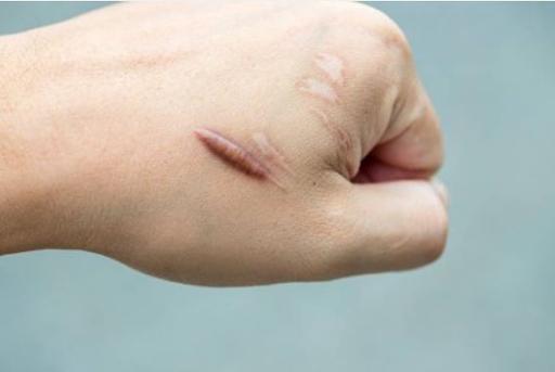 Cắt sẹo kiêng an gì?