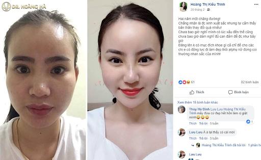 Feedback từ khách hàng sau 2 năm khi cấy mỡ tự thân tại Dr Hoàng Hà