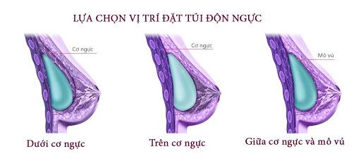 3 vị trí đặt túi độn nâng ngực an toàn thường gặp
