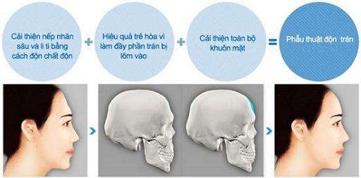 Quy trình phẫu thuật Độn trán