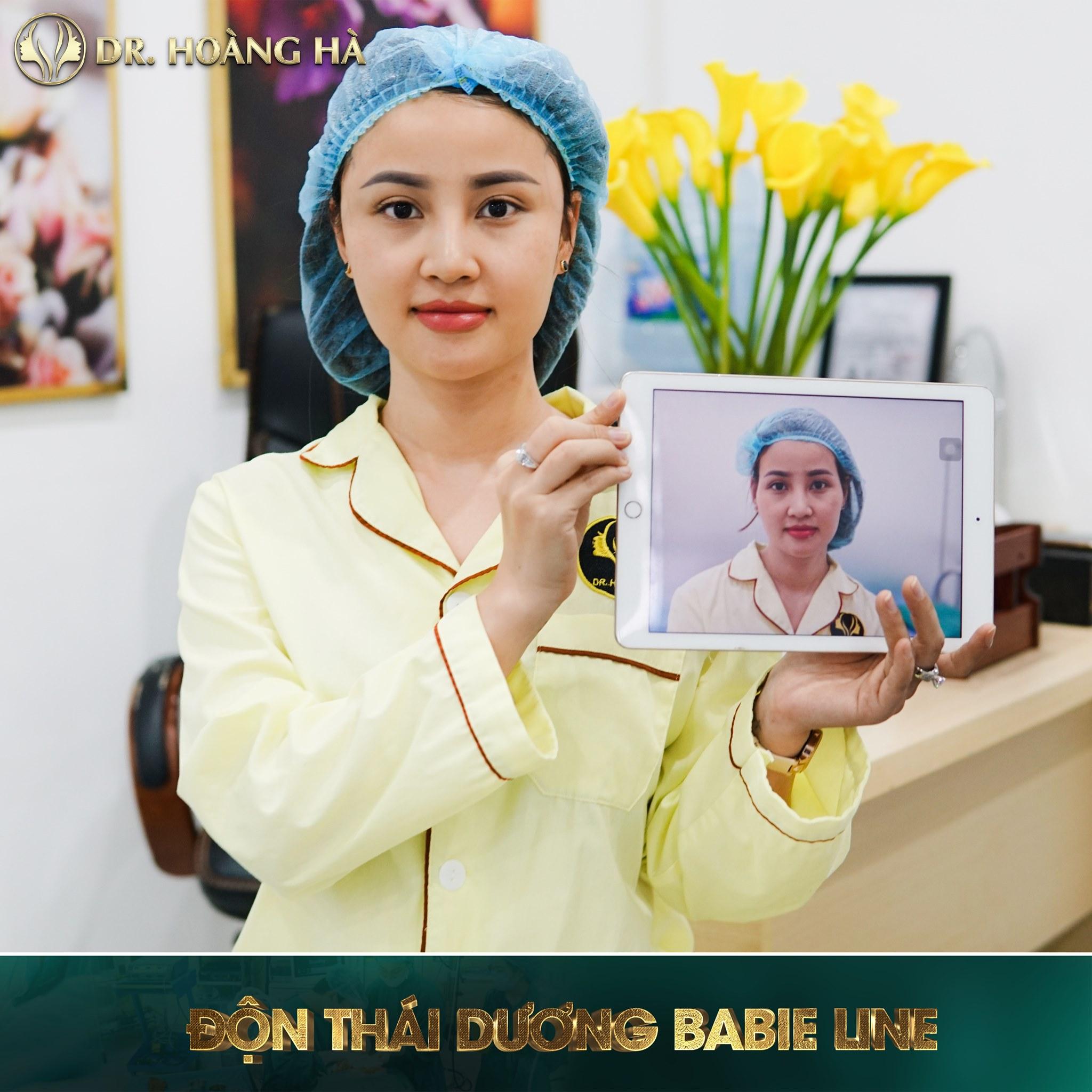 Bạn trông sẽ trẻ hơn cả 10 tuổi khi thực hiện độn thái dương tại Dr Hoàng Hà