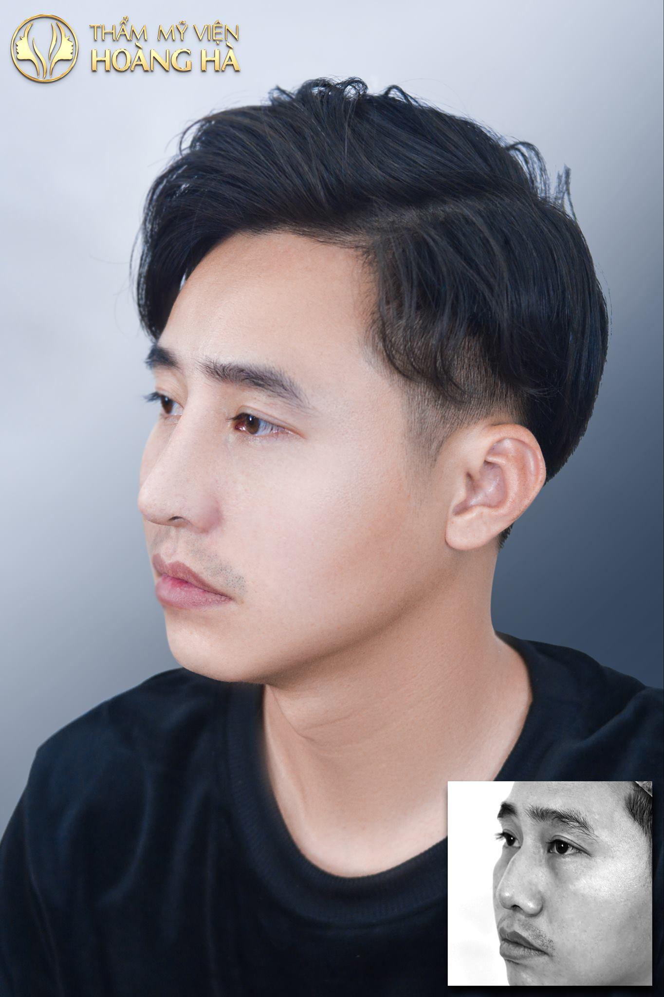 Khách hàng sau khi nâng mũi tại Dr Hoàng Hà