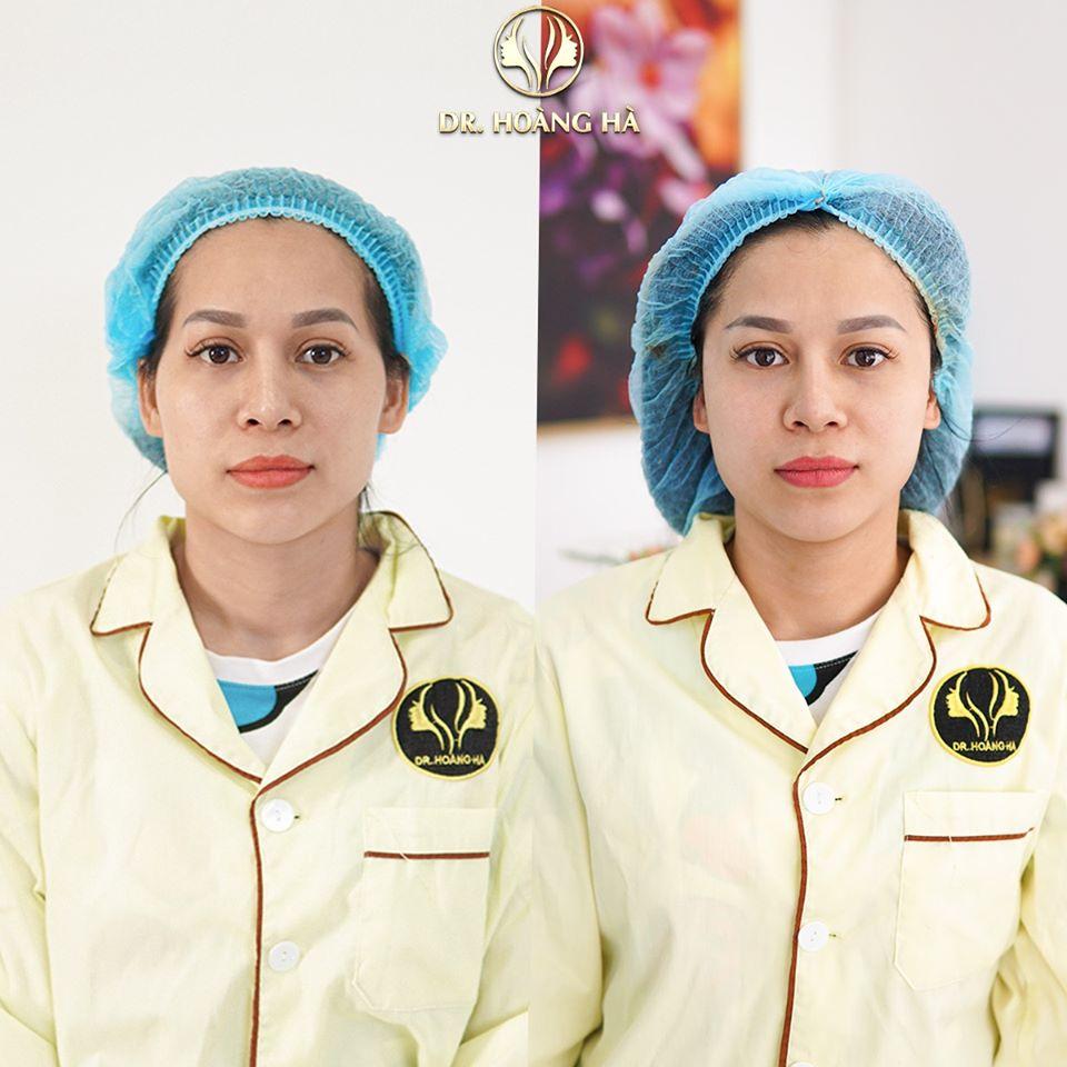 Khách hàng sau khi cấy mỡ tại Dr Hoàng Hà