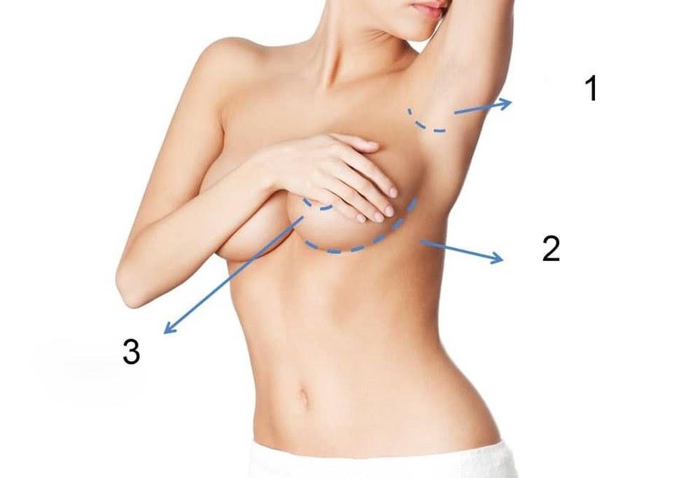 Nâng ngực nội soi đường quầng có hai vị trí đặt túi ngực