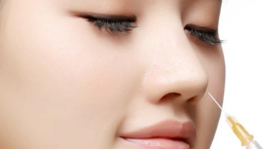 Tiêm chất làm đầy Filler để nâng cao sóng mũi