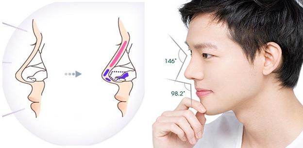 Hình mô phỏng kỹ thuật nâng mũi cho nam
