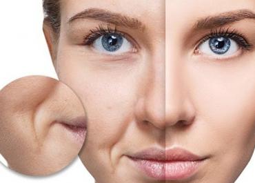 Nâng mũi sụn Surgiform – Top 5 ưu điểm vượt trội