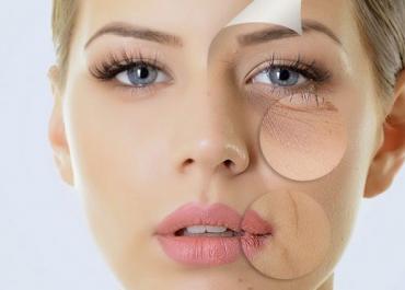 Căng chỉ collagen bao lâu thì đẹp? Hỏi đáp cùng ThS.BS Hoàng Hà
