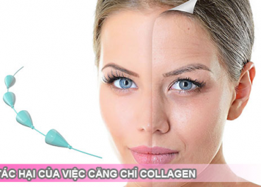Căng Chỉ Collagen có hại & nguy hiểm không? Chia sẻ từ chuyên gia