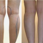 Hút mỡ bắp chân