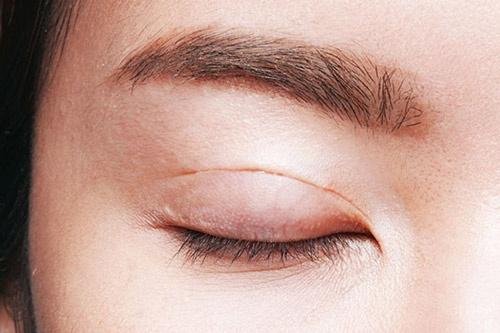 Với đường mổ mảnh và nhỏ nên khó nhìn thấy sẹo bằng mắt thường