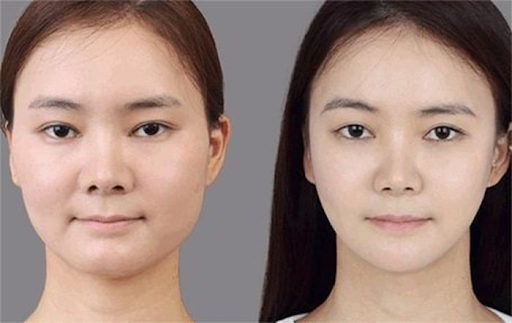 Botox được sử dụng để làm thon gọn hàm mặt