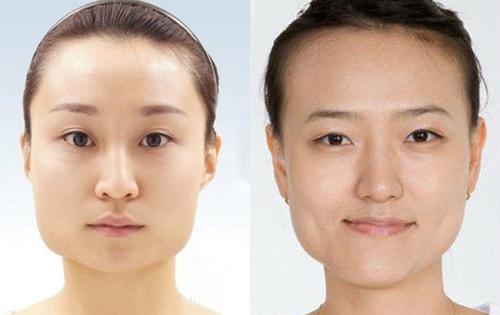 Tiêm botox gọn hàm - Giải pháp làm gọn khuôn mặt không phẫu thuật