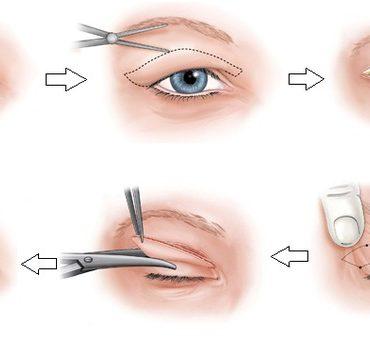 Nhấn mí mắt - Giải pháp tạo hình mắt 2 mí AN TOÀN không phẫu thuật