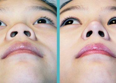 """Thu gọn cánh mũi - Giải pháp cho cánh mũi rộng """"quá khổ"""""""