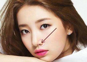 Thu gọn cánh mũi có vĩnh viễn không? Chuyên gia giải đáp