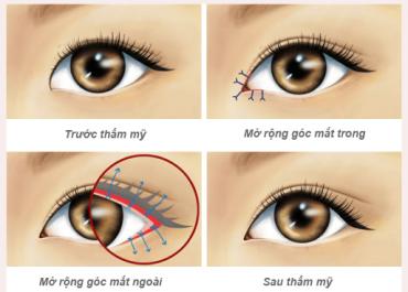 Mở góc mắt có để lại sẹo không? Bạn hỏi - Bác sĩ trả lời