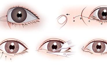 """Có nên mở góc mắt không? Bác sĩ Hoàng Hà """"Giải Đáp"""""""