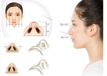 Thu gọn cánh mũi nội soi là gì? Giá bao nhiêu? Chuyên gia giải đáp